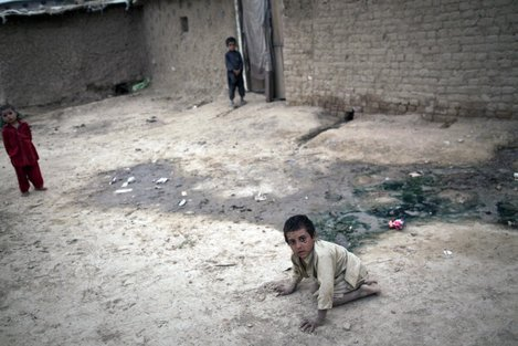 A boy with Polio in Islamabad, 2011 Credit: Behrouz Mehri/AFP/Getty Images